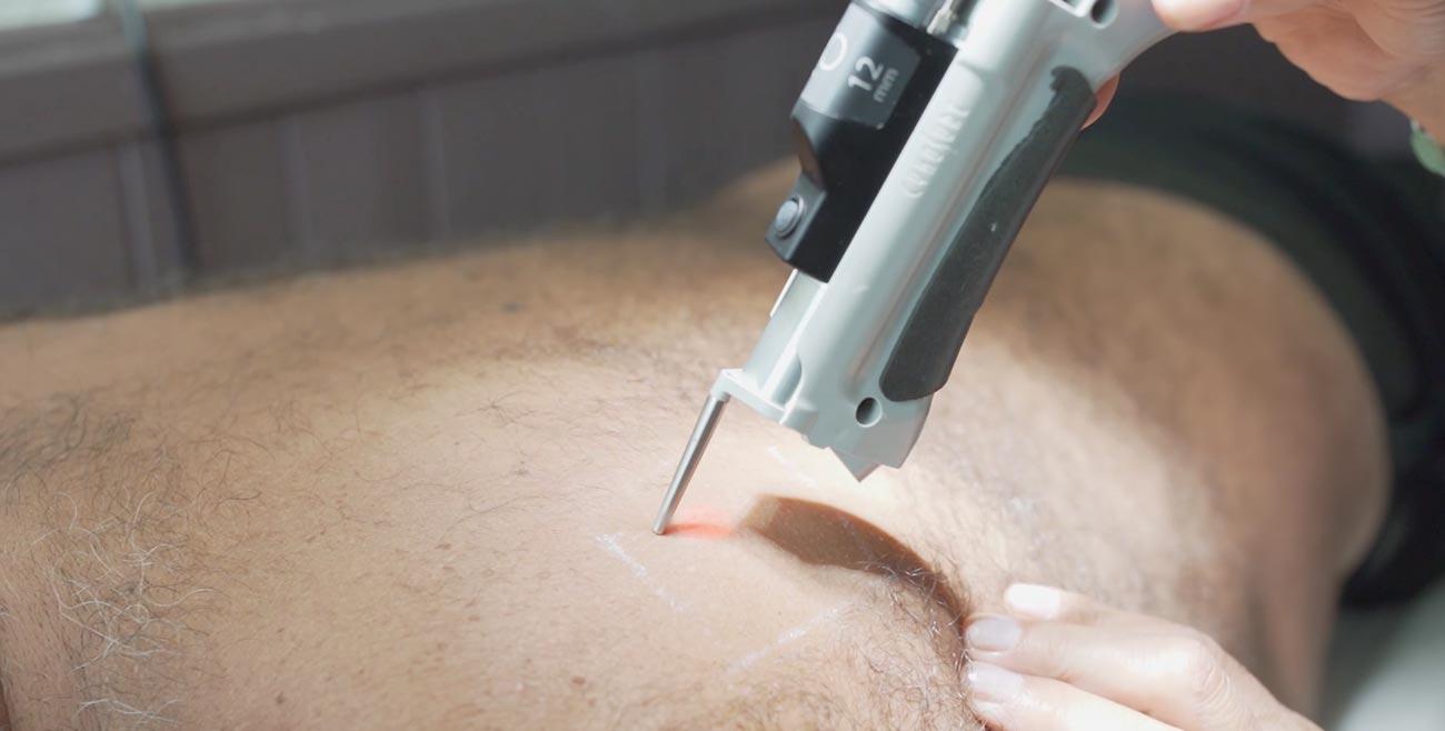 épilation laser lyon bourgoin-jallieu