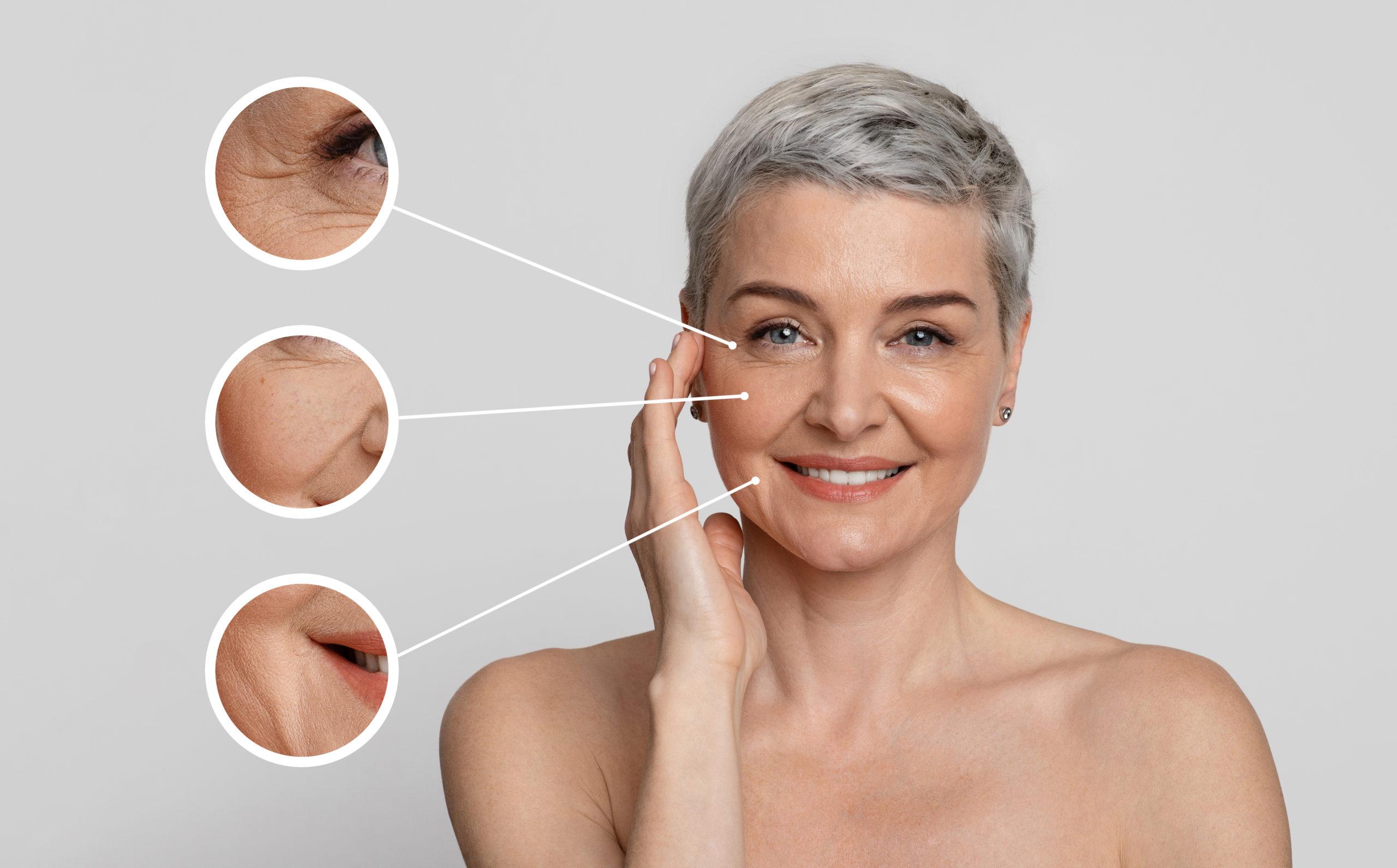 micro needling anti age