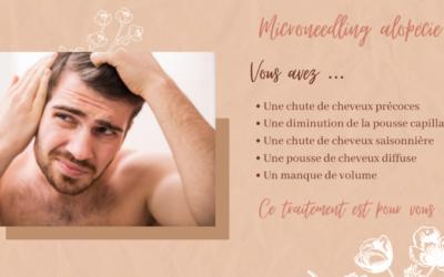 Microneedling alopécie : ce traitement est pour vous !